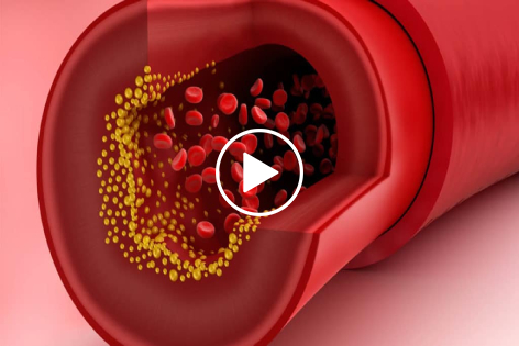 Get Your LDL-Cholesterol into the Ideal Range to Prevent a Heart Attack