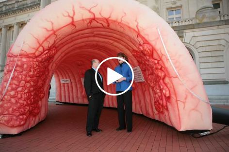 Colon Cancer Prevention: How genes interact with nutrition and lifestyle